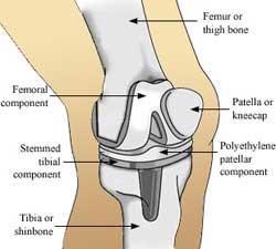 pelvic fracture surgery kolkata